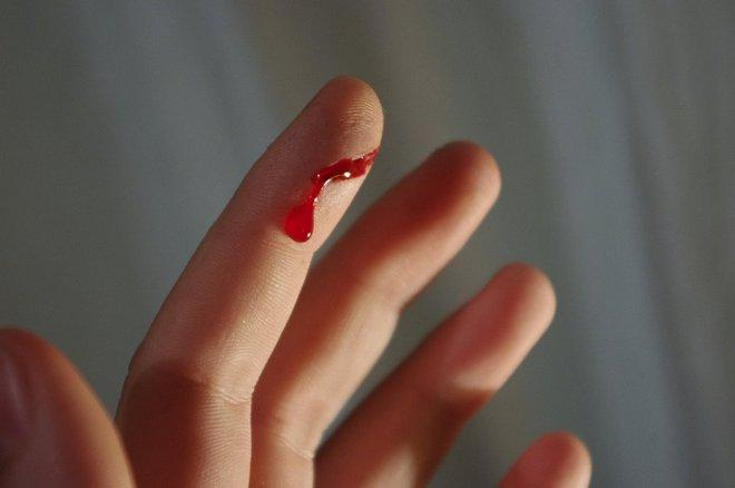 Порез пальца