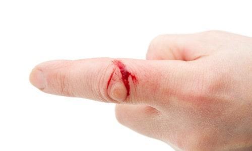 Осложнение при порезе пальца